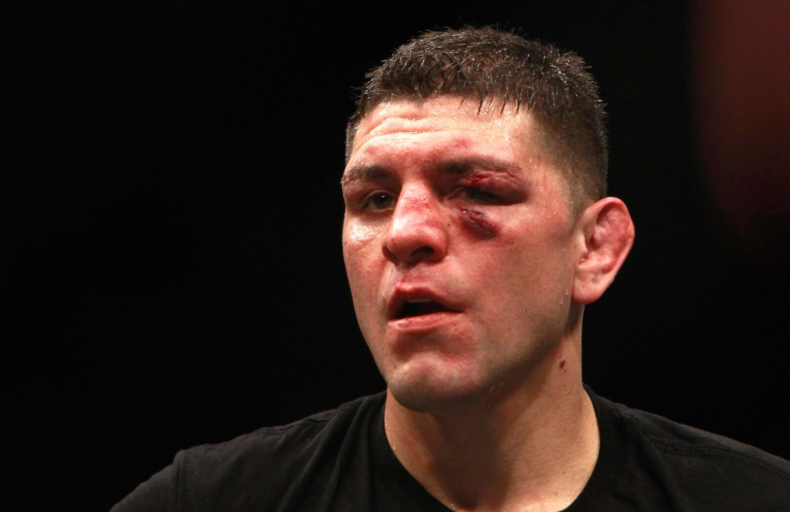 No one should want to see the Nick Diaz vs. Jorge Masvidal fight