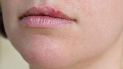 what to do if you have herpes