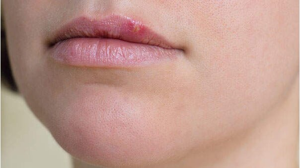 Facts about dating someone with herpes — pic 14