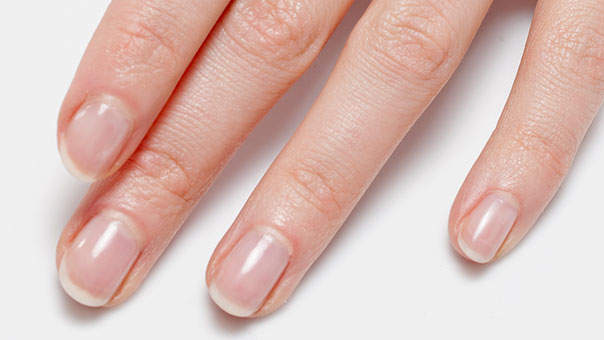 Image result for Of Black Lines On Nails: The Easy Ways
