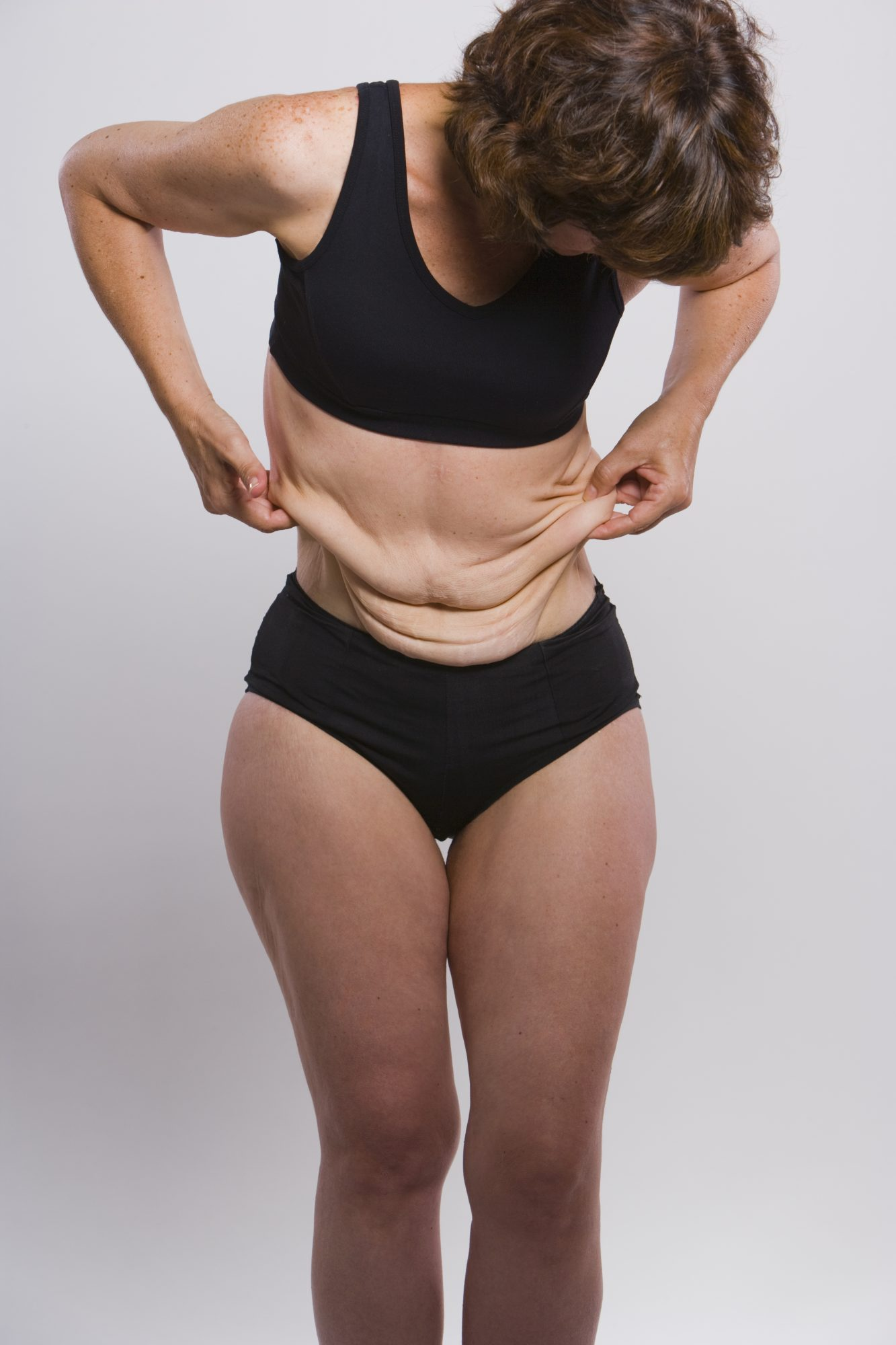 What Is Skin Removal Surgery Health