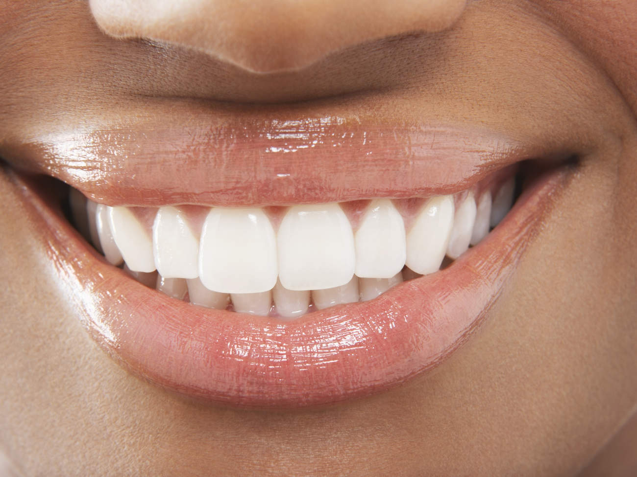 The Best Whitening Products For Sensitive Teeth