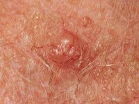 A pearly pimple