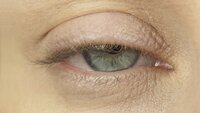 A droopy eyelid