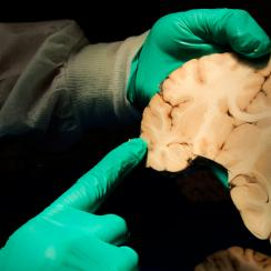 Dr. Ann McKee analyzes brain tissue at the Boston University brain bank.
