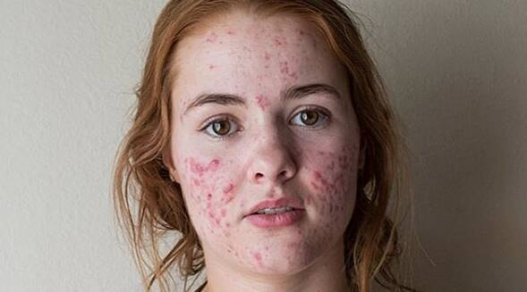 19 things you should know before dating a girl with acne