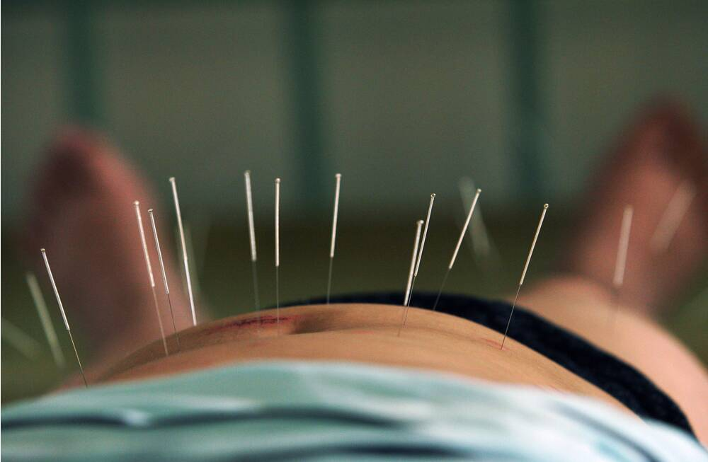 dating an acupuncturist