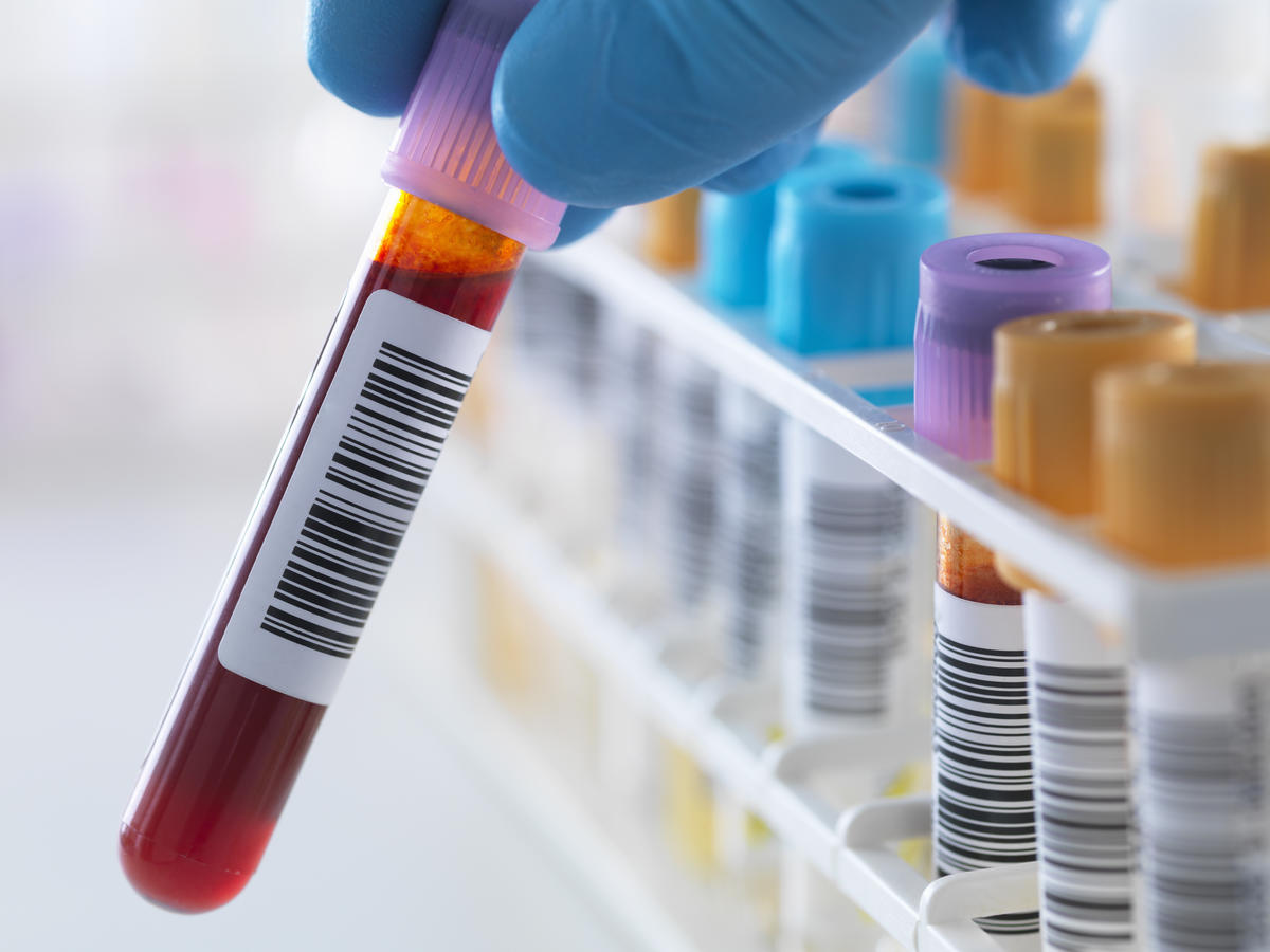 09-blood-test-celiac-disease