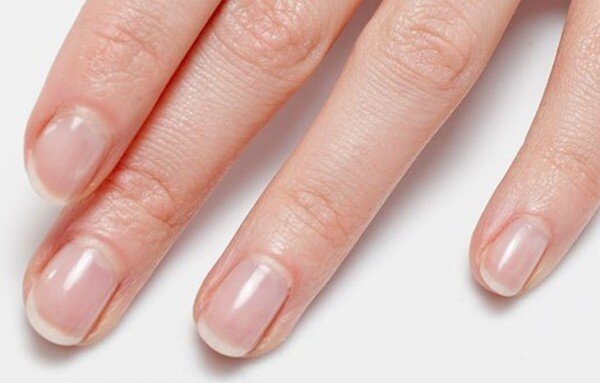 10 Things Your Nails Can Tell You About Health